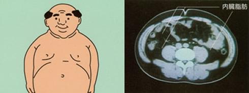 内臓脂肪型肥満